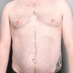 Liposuction, Dr. Killeen, Case 1 Before