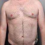 Liposuction, Dr. Killeen, Case 1 After