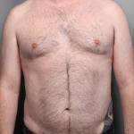 Liposuction, Dr. Killeen, Case 1 After