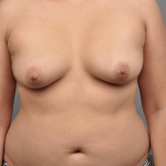 Liposuction, Dr. Cassileth, Case 10 Before