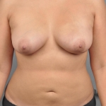 Liposuction, Dr. Cassileth, Case 10 After