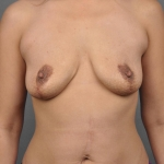 Breast Implant Revision, Dr. Cassileth, Case 13 Before