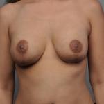 Breast Implant Revision, Dr. Cassileth, Case 13 After