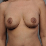 Breast Implant Revision, Dr. Cassileth, Case 13 After