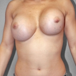 Breast Implant Revision, Dr. Kelly Killeen, Case 11 Before