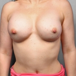 Breast Implant Revision, Dr. Kelly Killeen, Case 11 After