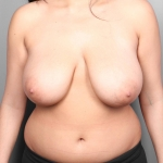 Breast Reduction, Dr. Cassileth Case 10 Before