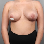 Breast Reduction, Dr. Cassileth Case 10 After
