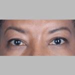 Blepharoplasty, Dr. Chang, Case 1 After