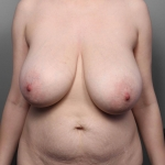 Breast Reduction, Dr. Killeen, Case 2 Before