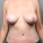 Breast Reduction, Dr. Killeen, Case 2 After