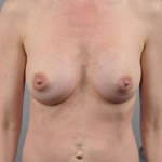 One-Stage Breast Reconstruction, Dr. Cassileth, Case 19 Before
