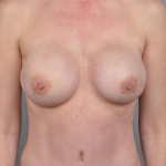One-Stage Breast Reconstruction, Dr. Cassileth, Case 19 After