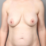 Breast Augmentation, Dr. Killeen, Case 15 Before