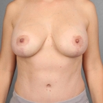 Breast Lift, Dr. Killeen, Case 2 After