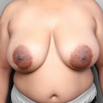 Breast Reduction, Case 1, Dr. Killeen Before