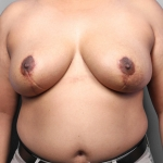 Breast Reduction, Case 1, Dr. Killeen After