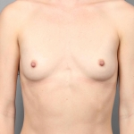 Breast Augmentation, Dr. Killeen, Case 16 Before