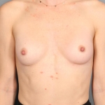 Breast Augmentation, Dr. Killeen, Case 16 After
