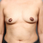 One-Stage Breast Reconstruction, Dr. Killeen, Case 2 Before