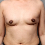 One-Stage Breast Reconstruction, Dr. Killeen, Case 2 After