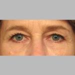 Blepharoplasty, Dr. Sunder, Case 5 Before