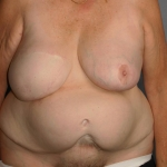 Breast Reconstruction Revision, Dr. Cassileth, Case 3 Before