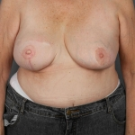 Breast Reconstruction Revision, Dr. Cassileth, Case 3 After