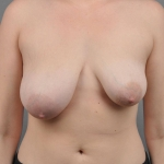 Breast Asymmetry, Dr. Cassileth, Case 13 Before