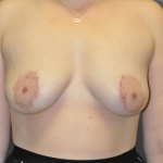Breast Asymmetry, Dr. Cassileth, Case 13 After