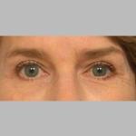 Blepharoplasty, Dr. Sunder, Case 5 After
