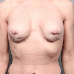 Capsular Contracture, Dr. Killeen, Case 2 Before