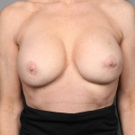 Capsular Contracture, Dr. Killeen, Case 2 After