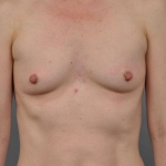 Breast Fat Transfer, Dr. Cassileth, Case 1 Before