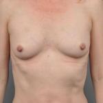 Breast Fat Transfer, Dr. Cassileth, Case 1 After