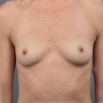 One-Stage Breast Reconstruction, Dr. Cassileth, Case 27 Before