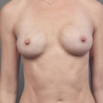 One-Stage Breast Reconstruction, Dr. Cassileth, Case 27 After