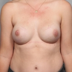 One-Stage Breast Reconstruction, Dr. Killeen, Case 4 After