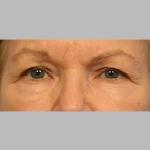 Blepharoplasty, Dr. Sunder, Case 3 Before