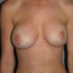 Breast Implant Revision, Dr. Cassileth, Case 7 After
