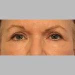 Blepharoplasty, Dr. Sunder, Case 3 After