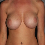 Breast Asymmetry, Dr. Cassileth, Case 7 Before
