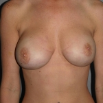 Breast Asymmetry, Dr. Cassileth, Case 7 After