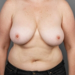 Breast Reduction, Dr. Cassileth, Case 2 Before