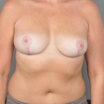 Breast Reduction, Dr. Cassileth, Case 2 After