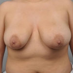 Breast Reduction, Dr. Cassileth, Case 8 Before