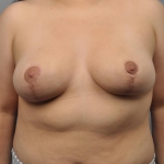 Breast Reduction, Dr. Cassileth, Case 8 After