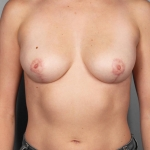 Breast Reduction, Dr. Chang, Case 1 After