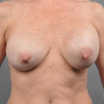 Breast Implant Revision, Dr. Cassileth, Case 9 Before