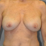 Breast Implant Revision, Dr. Cassileth, Case 9 After